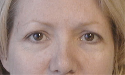 Blepharoplasty Los Angeles California