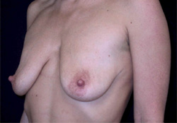 Breast Lift Los Angeles California