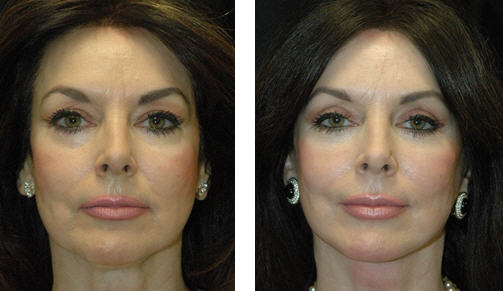 Patient before and after photo that underwent blepharoplasty