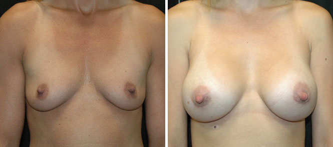 Breast Augmentation by Dr. Mani – periareolar (under areola) incision