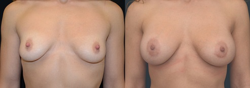 Breat Augmentation Before and After