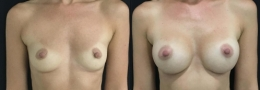 Breast Augmentation by Dr. Mani - inframammary (under breast) incision
