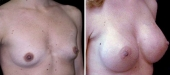 Breast Augmentation by Dr. Mani, transumbilical (belly button) incision