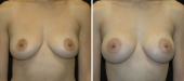 Breast Augmentation by Dr. Mani – inframammary (under breast) incision