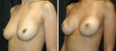 Breast Augmentation by Dr. Mani – transaxillary (armpit) incision