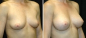 Breast Augmentation by Dr. Mani – transumbilical (belly button) incision