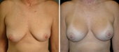 Breast Augmentation by Dr. Mani (periareolar incision)