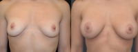 Breast Augmentation by Dr. Mani - periareolar incision