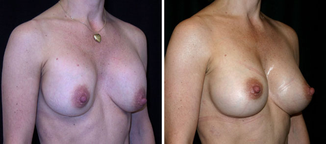 Breast Implant Revision
