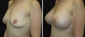 Breast Augmentation by Dr. Mani – transaxillary (armpit) incision