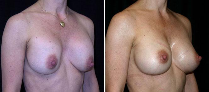 Breast augmentation lancaster